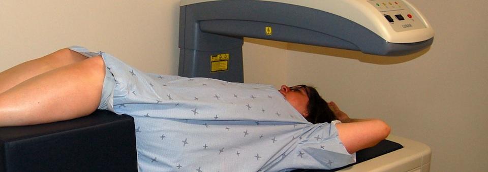 Densitométrie osseuse (ostéodensitométrie) - Hôpital général de ...